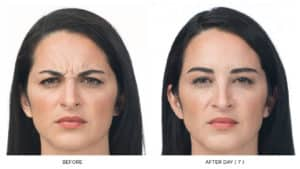 1 BEFORE AND AFTER BOTOX PICTURES IN ANN ARBOR MICHIGAN AVISSASKIN.COM